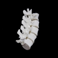 Picture of print of Lumbar Vertebrae