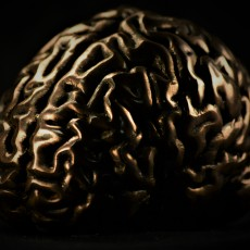 Picture of print of Human Brain Questa stampa è stata caricata da The Virtual Foundry