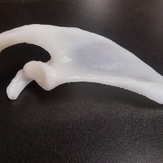 Picture of print of Shoulder - Scapula