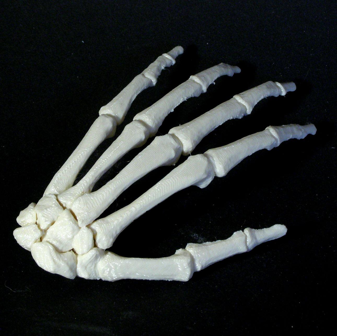 Bone - Hand - Left image