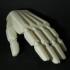 Passive Prosthetic Hand image