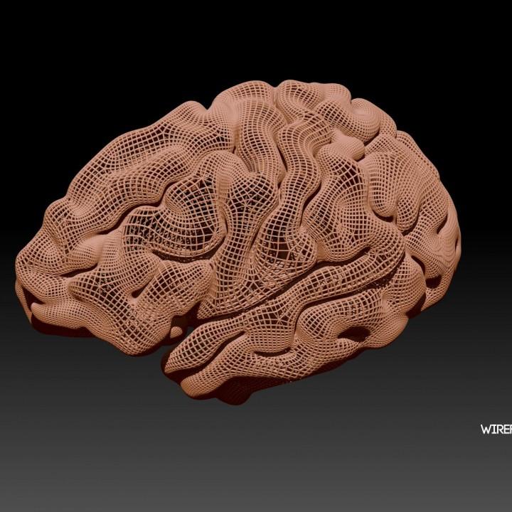 Radiant Brain from MRI