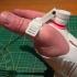 Evolution prothese de main ( droite ) image