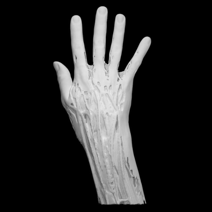 Download Hand Muscles Von Scan The World