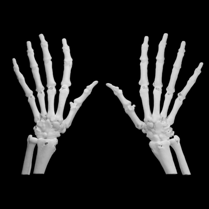 3D Printable Hand Bones By Scan The World