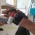 Thumb Prosthesis image