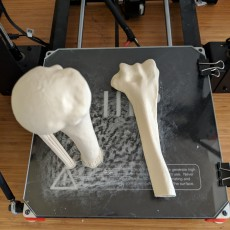 Picture of print of GIAA Bibliothèque Anatomique (Anatomic Library) - Humerus