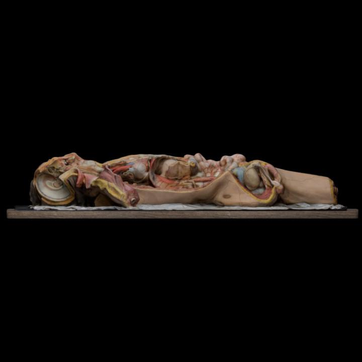Wax model of a prepared corpse