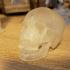 CT Skull Scan image